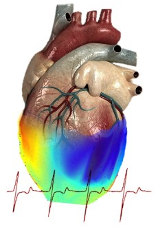 Patterns recorded from a human heart during surgery